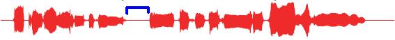 Vocalistener_00_2